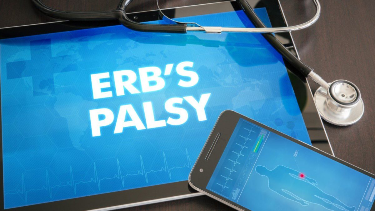 A complete guide to understanding what is Erb's Palsy with a list of possible symptoms, causes, and treatment. #erbspalsy